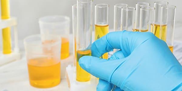 Analysis of urine